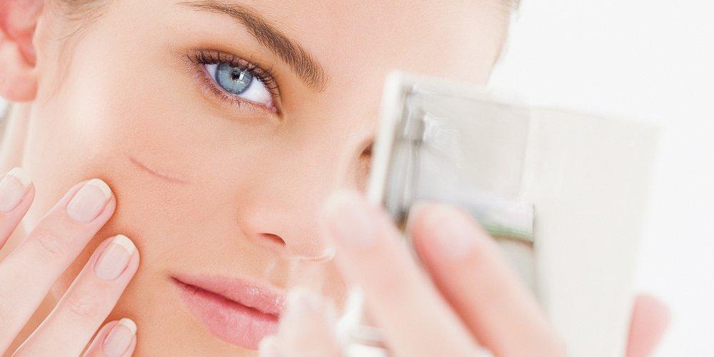 Косметические дефекты кожи